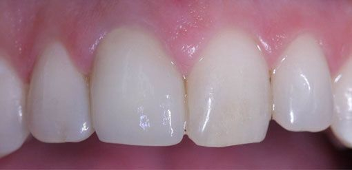 After treatment with the CEREC 3D system incorporating CAD-CAM technology