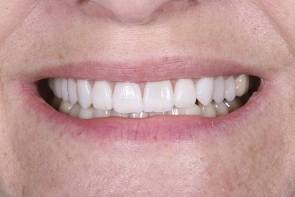After treatment of porcelain veneers