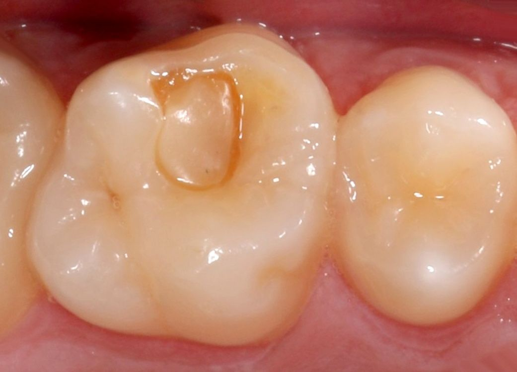 Before replacement of a defective dental filling with a new long-lasting layered one. The reconstruction is almost imperceptible.
