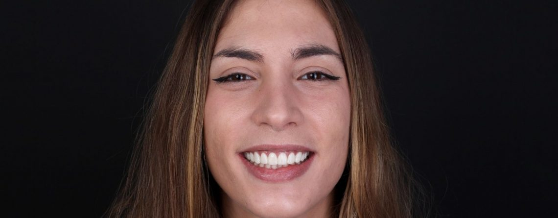 Laura's dental case: dental aesthetics treatment