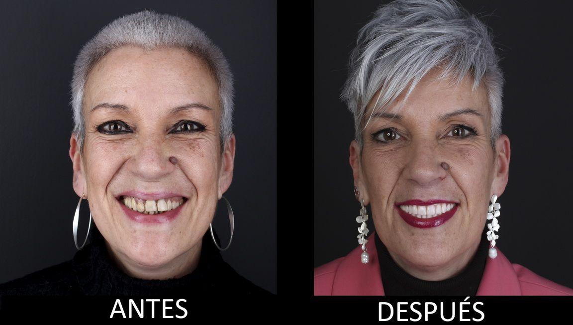 Before and after dental implant treatment