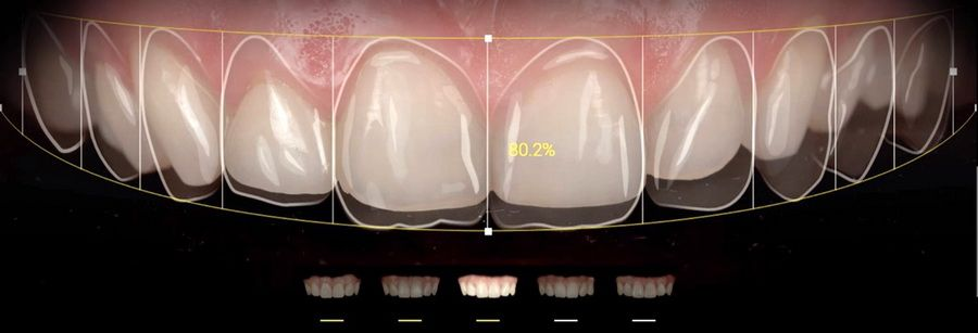 Applications like Smile Cloud, Ivosmile, DSDapp or Snap Dental help us in the calculation of proportions, choice of shape, color and position of the teeth in your new smile and allow us to carry out digital simulations to help us choose your new smile.