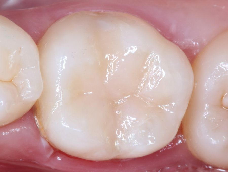 The Carisolv® system dissolves dental tissue with caries in a very controlled and conservative manner, without damaging surrounding healthy tissue