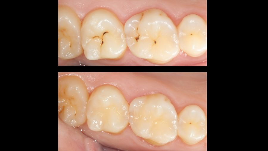 Dental air abrasion is a minimally invasive method of treating caries, with no discomfort, vibrations or high-pitched sounds