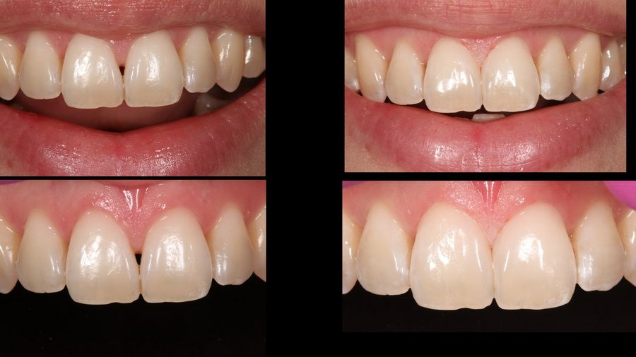 Tooth reconstruction treatment in Padrós dental clinic. Your dentist in Barcelona
