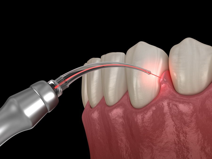 Periodontal treatment of the gums for diseases such as gingivitis and periodontitis in the dental clinic Padrós in Barcelona