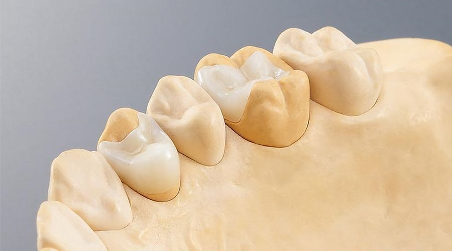 The Cerec 3D CAD/CAM dental system means we can fabricate dental restorations with a precision of fit down to 30 microns.