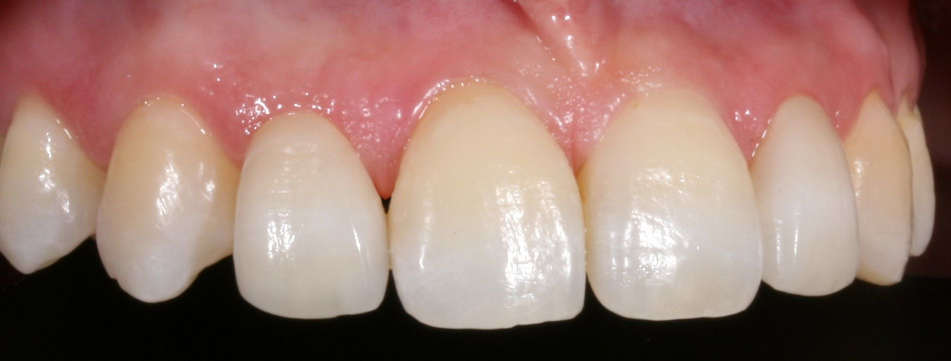 Before treatment with the CEREC 3D system incorporating CAD-CAM technology