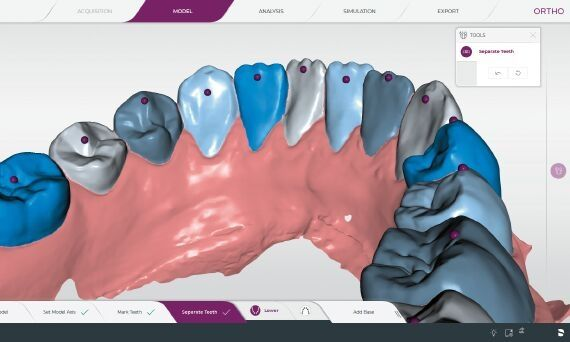 Digital reproduction obtained through the new intraoral scanner PrimeScan