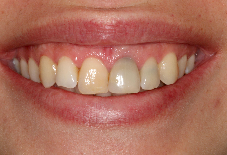 Before treatment of porcelain veneers