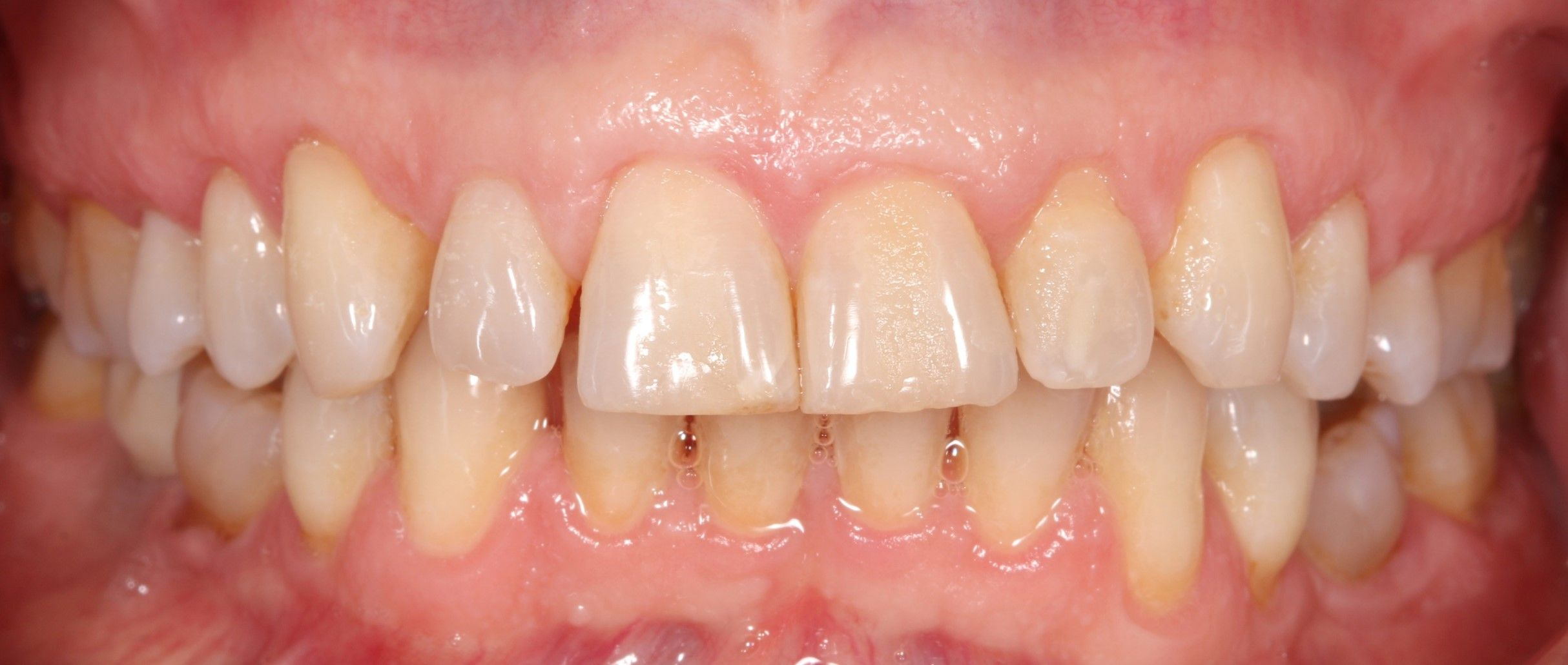 After treatment of receding gums using the Pinhole technique