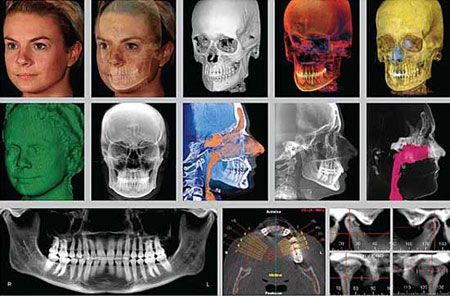 The Dolphin 3D orthodontic study system helps us to select the most suitable treatment for each case