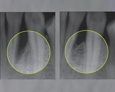 With Emdogain™ it is possible to reliably regenerate bone lost due to periodontitis, helping to preserve strong teeth
