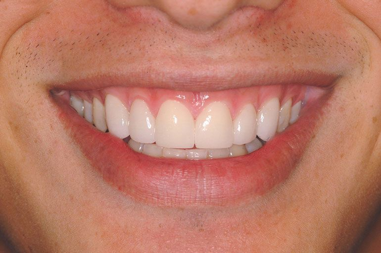 After treatment of ceramic or porcelain veneers using Lumineers technology