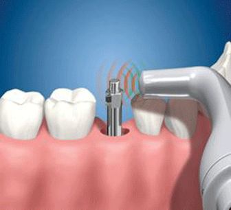 The Osstell system controls the stability and progress of dental implants