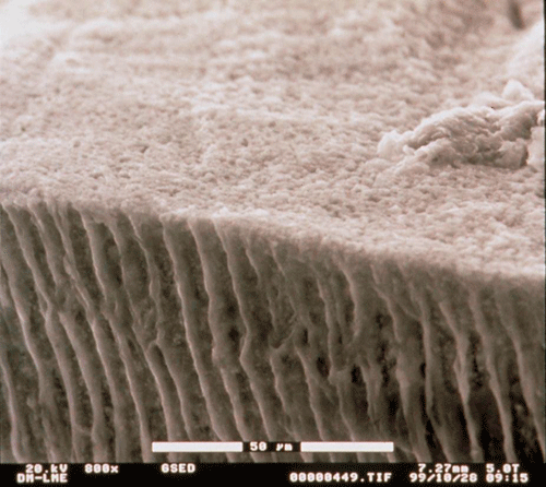 Photograph of tubules in teeth dentine as seen through an environmental scanning electron microscope (study by Clínica Dental Padrós)
