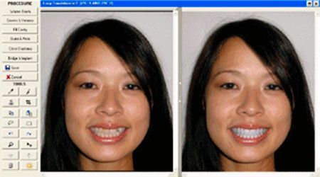 Dental aesthetics. Computer simulation of the change in your smile means you can see how the general appearance of your face will improve