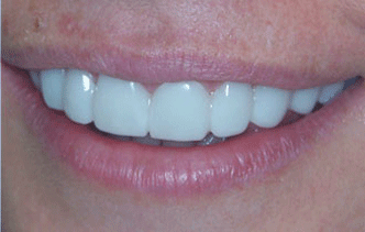 Snap-On Smile® is an innocuous, non-invasive aesthetic dental solution. It consists of temporary aesthetic sleeves that are easily fitted and removed