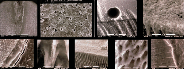 These are a sample of some of the images of a research carried out in the dental clinic Padrós with an electron microscope and that was published in one of the national and foreign scientific journals