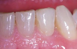 Example of a real case treated at the Padrós Dental Clinic after proceeding to the treatment of dental implants. As you can see, a totally clean and natural effect is achieved.