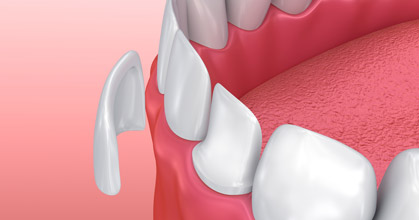Porcelain Veneers Will Improve Your Dental Esthetics