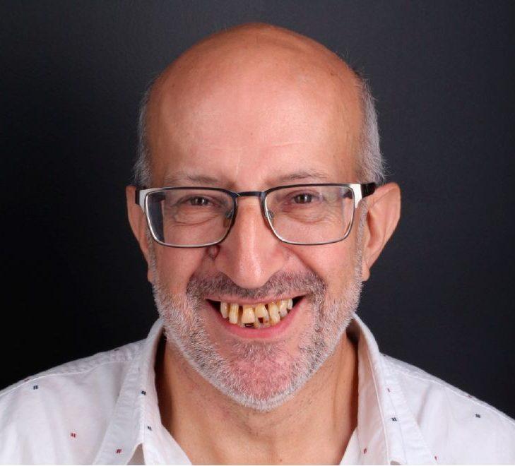 Before dental implants threatment