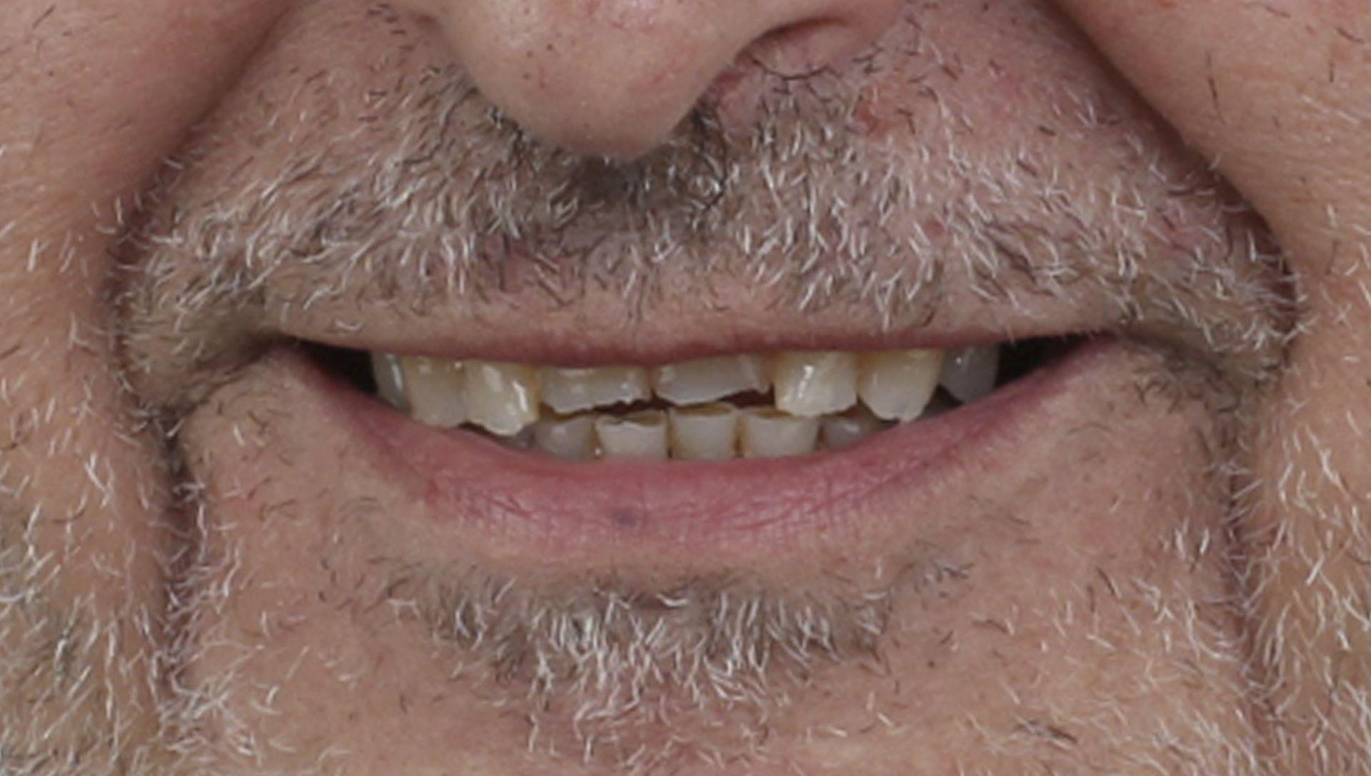 Before Dental prostheses Treatment