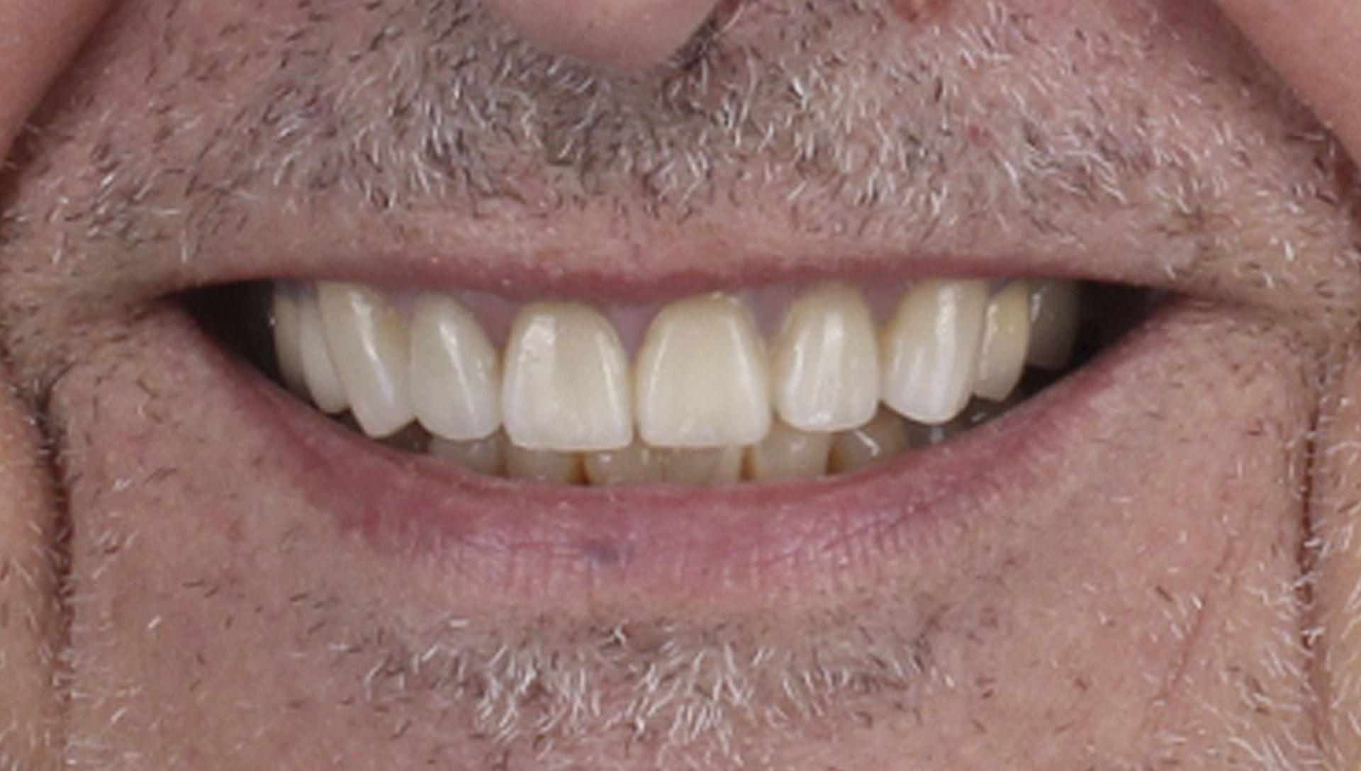 After dental prostheses Treatment