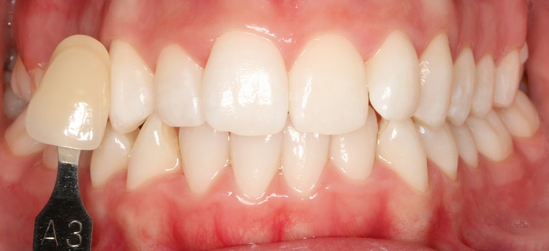 Dental whitening treatment. Padrós dental clinic, dentist in Barcelona