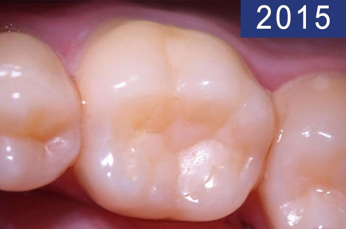 Dental filling 18 years later, performed in 1997 at Dental Clínica Padrós in a dental caries treatment