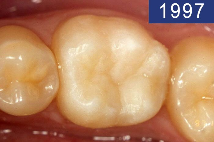 Dental filling performed in 1997 at Dental Clinic Padrós in a dental caries treatment