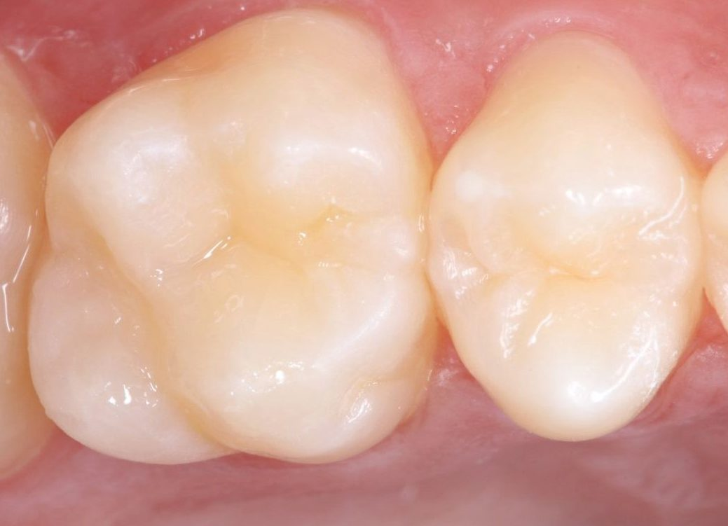 After replacement of a defective dental filling with a new long-lasting layered one. The reconstruction is almost imperceptible.
