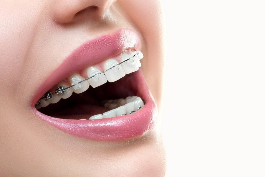 We have the Damon orthodontic brackets treatment at Padrós dental clinic, your dentist in Barcelona