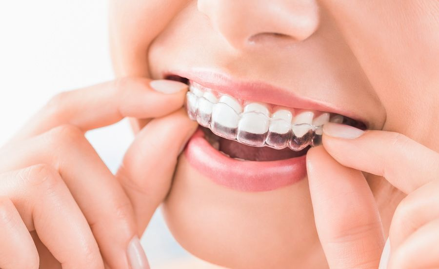 The Padrós dental clinic in Barcelona has the invisalign invisible orthodontic treatment, transparent and removable appliances