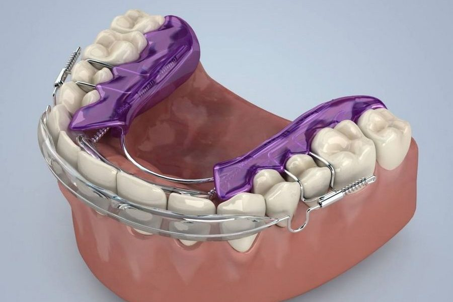 We have the Inman Aligner fast orthodontic treatment in Padrós dental clinic, your dentist in Barcelona