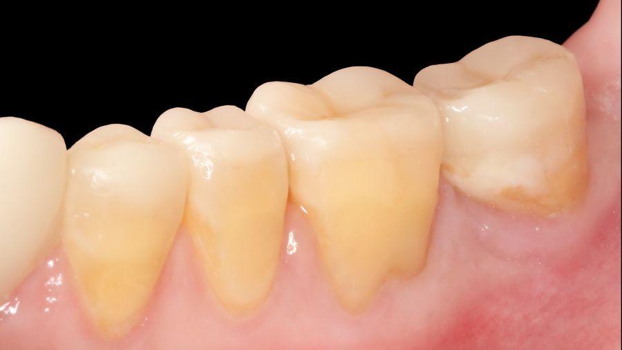 Case of dental wear treated in our dental clinic in Barcelona