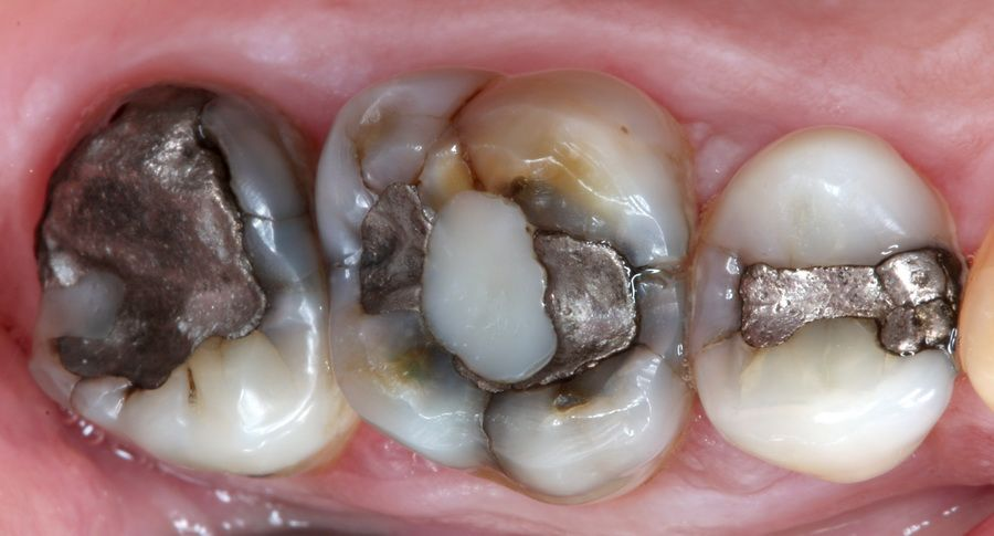 Amalgam removal treatment, old metal fillings in Padrós dental clinic. Your dentist in Barcelona