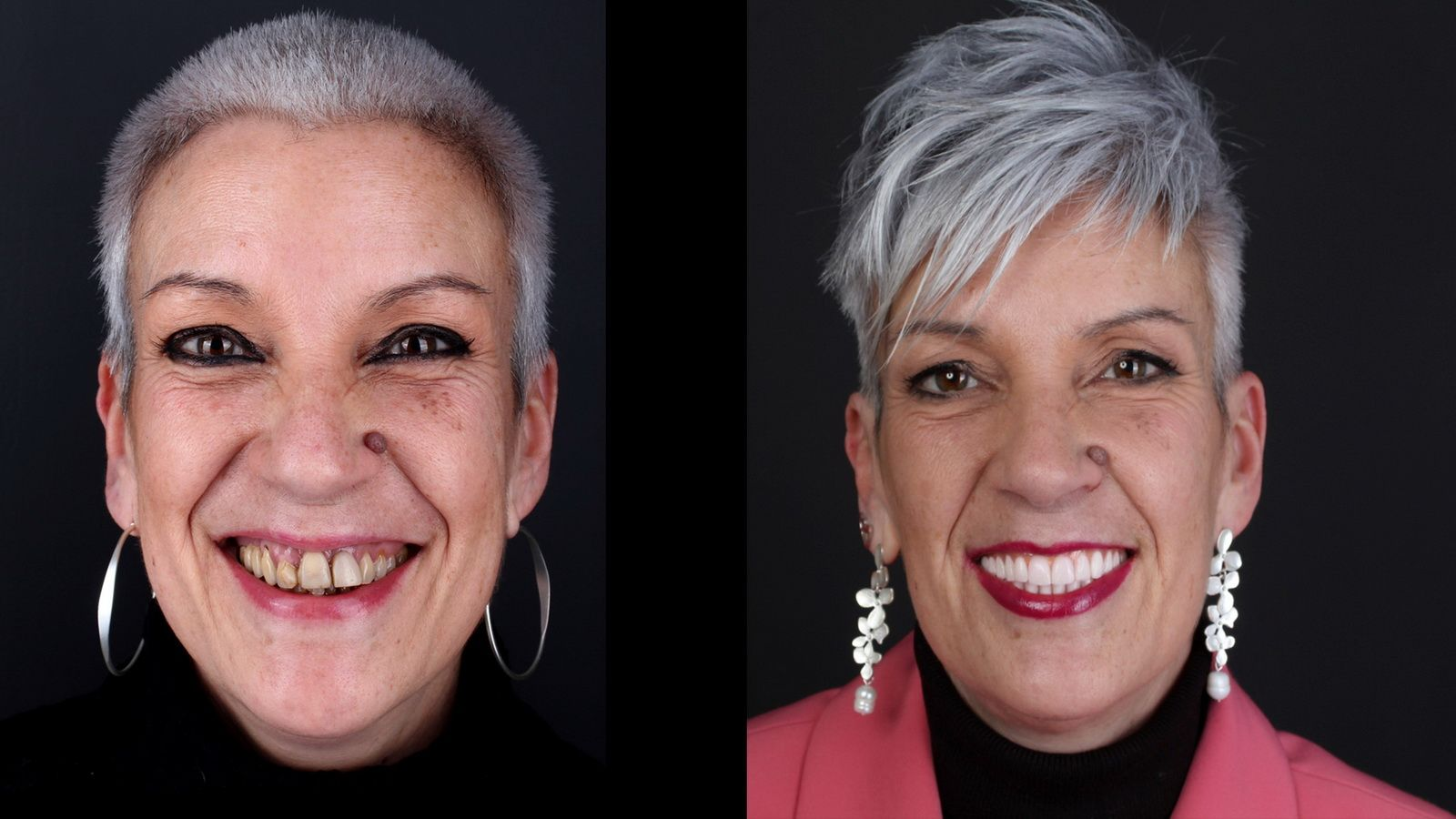 Dental implant treatment at the Padrós dental clinic. Your dentist in Barcelona