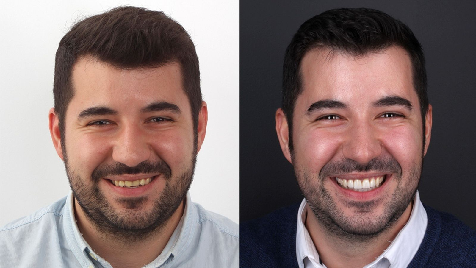 After & Before treatment of porcelain veneers