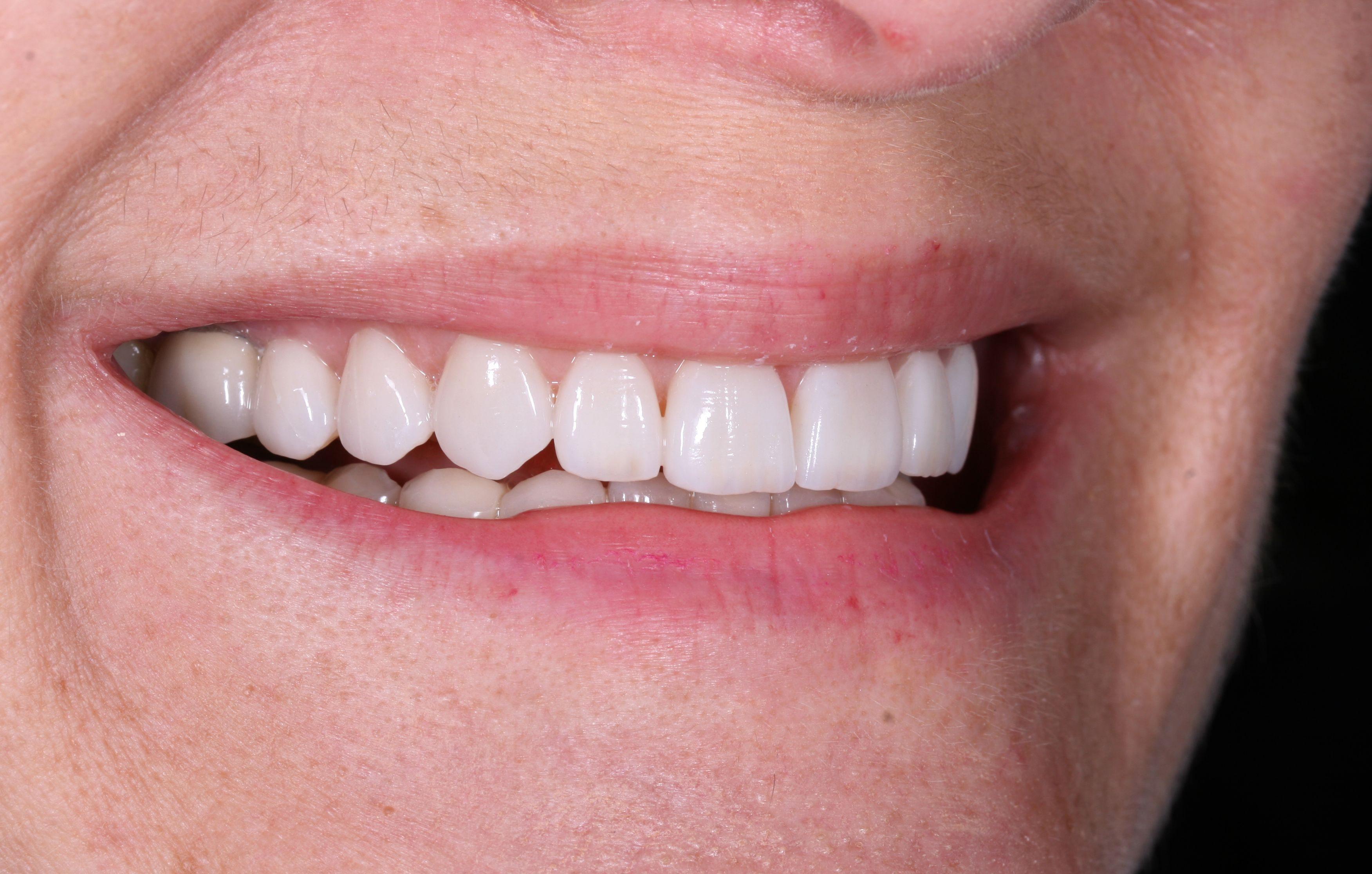 Final result after treatment of porcelain veneers