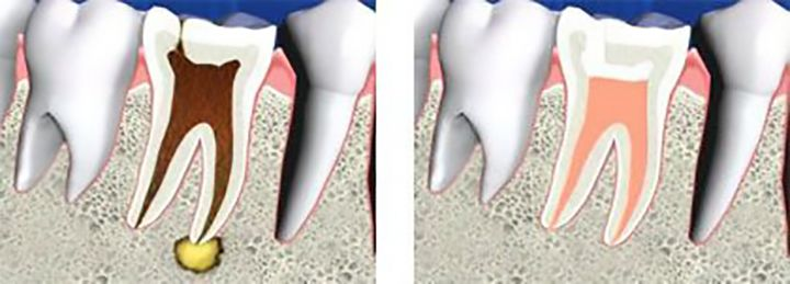 Internal view of the teeth before and after the endodontic treatment