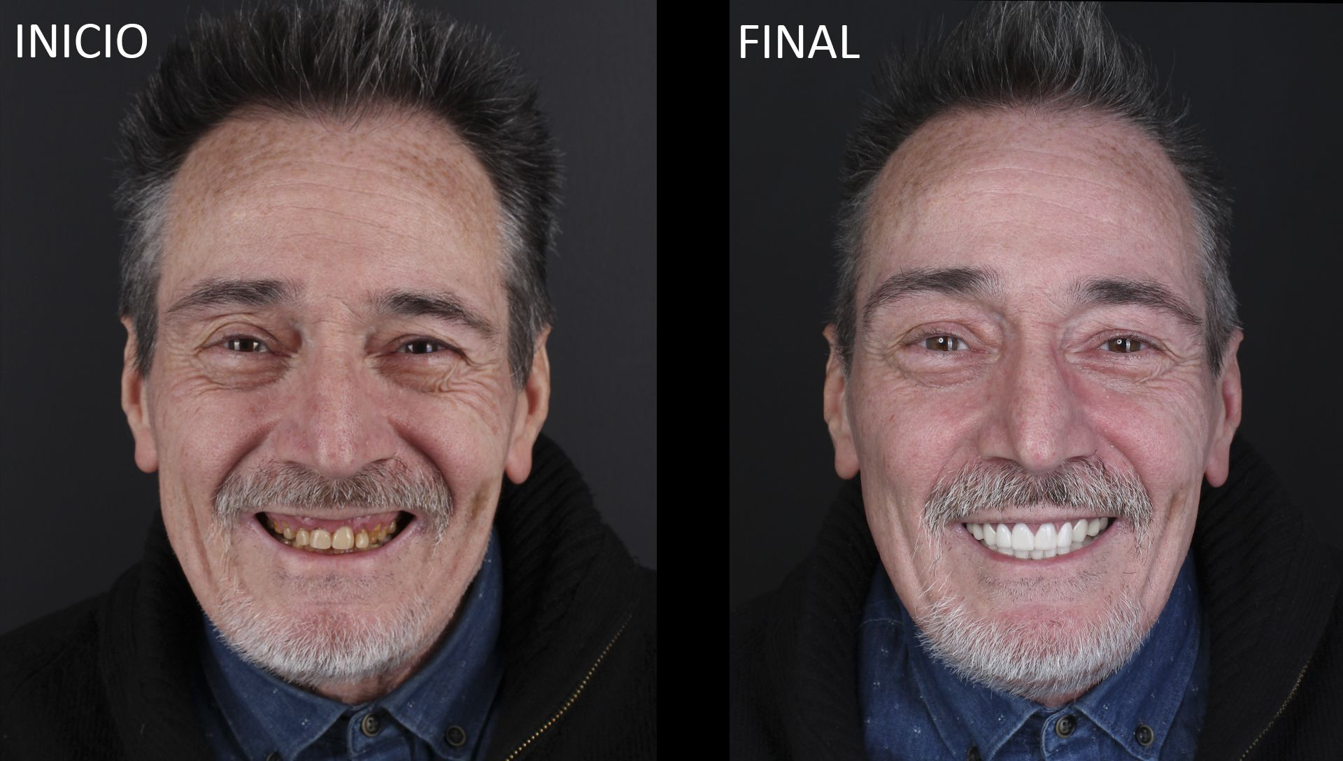 Bafore and after dental prostheses Treatment