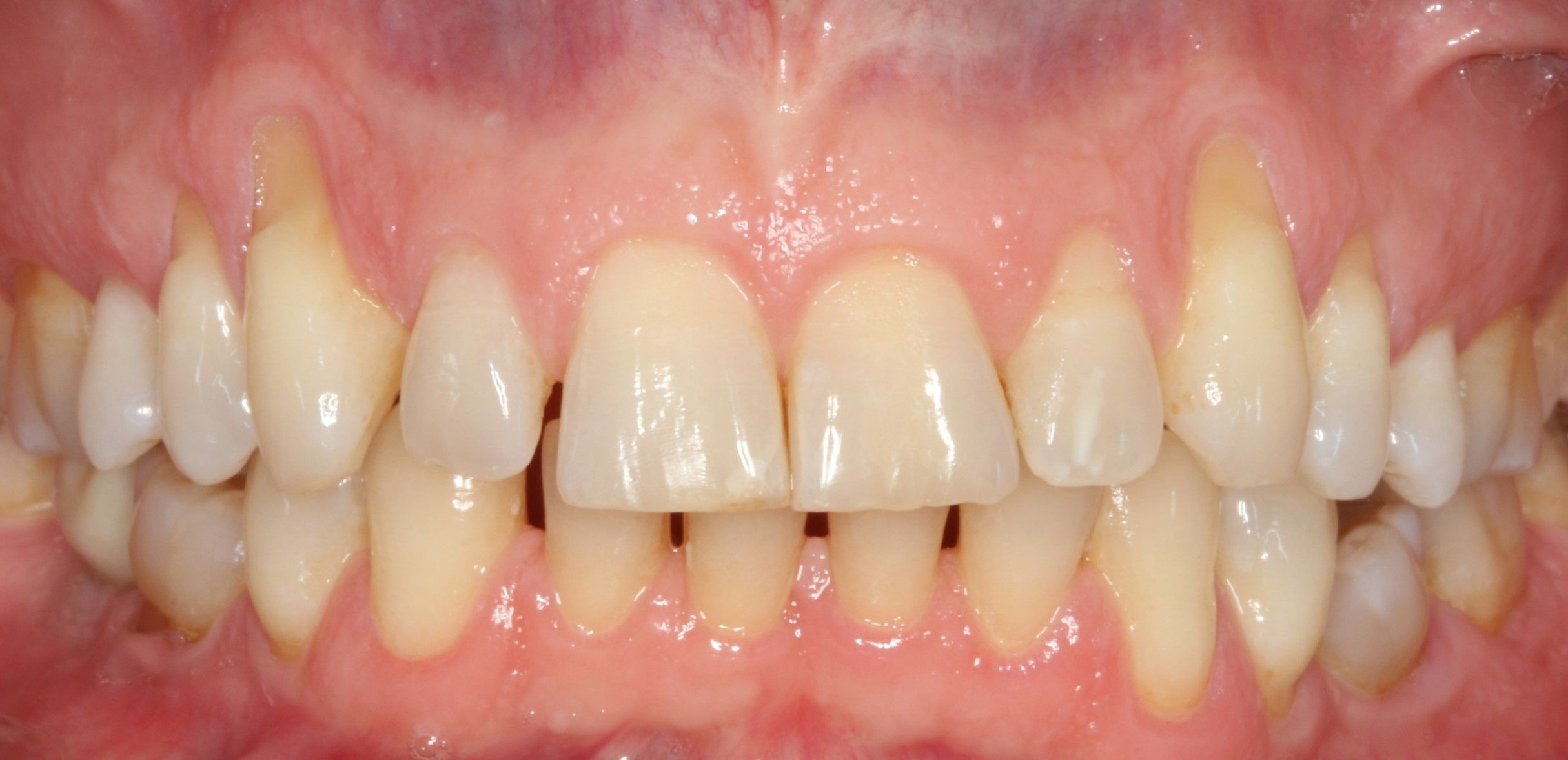 Before treatment of receding gums using the Pinhole technique