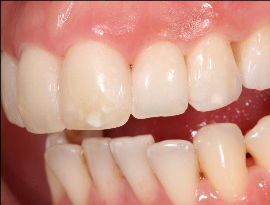 Aesthetic treatment for receding gums. Padrós Dental Clinic, dentist in Barcelona