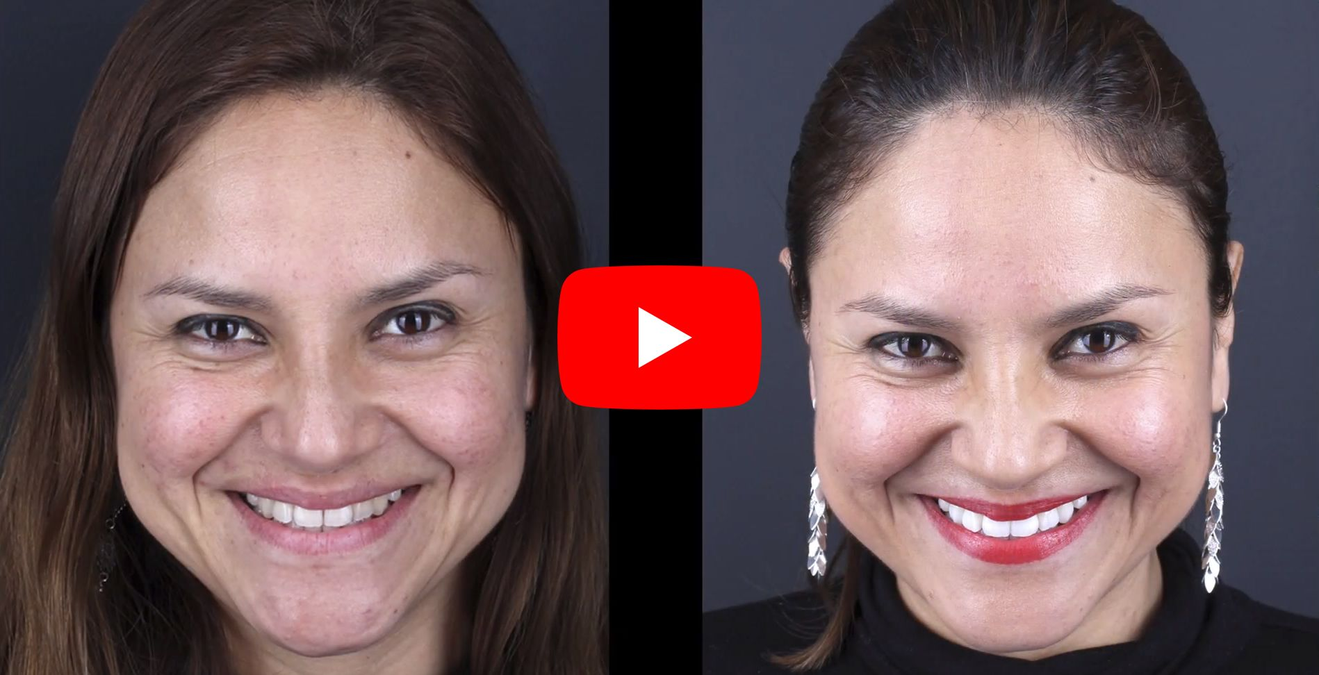 Video testimonials of patients treated at the Padrós dental whitening clinic
