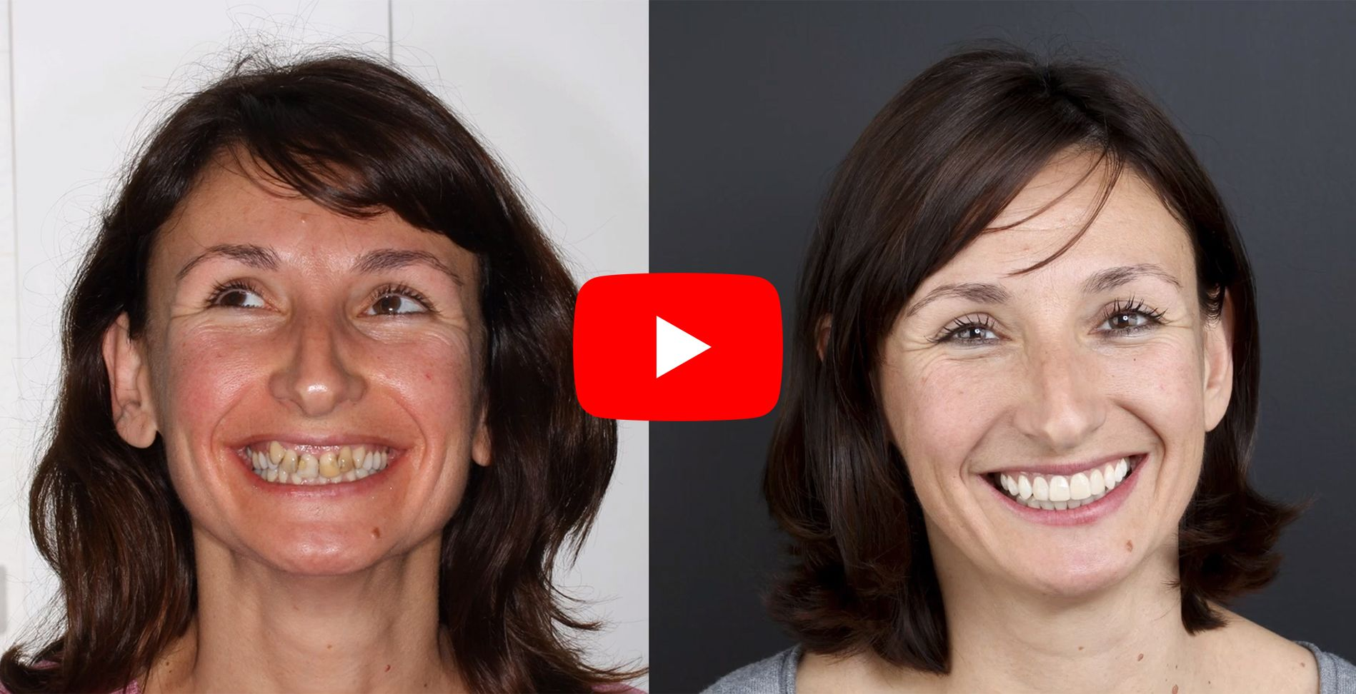 Video testimonials of patients treated at the Padrós dental orthodontics