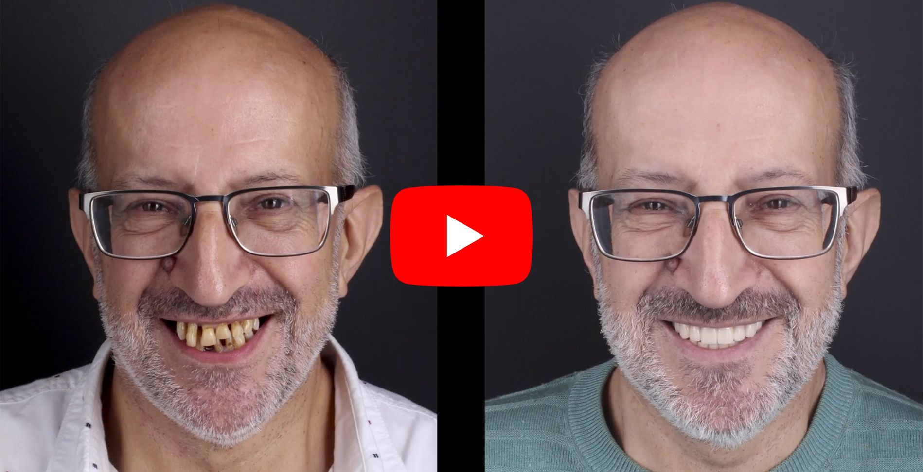 Video testimonials of patients treated at the Padrós Dental Clinic